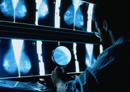 0706-Mammogram