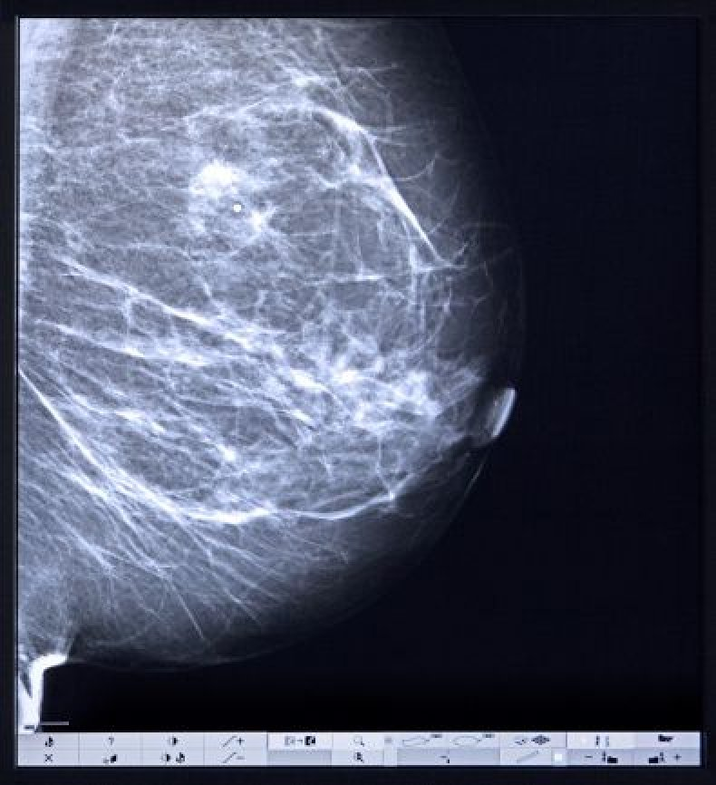 Breast Cancer Screenings Can Cause More Harm Than Good In Women