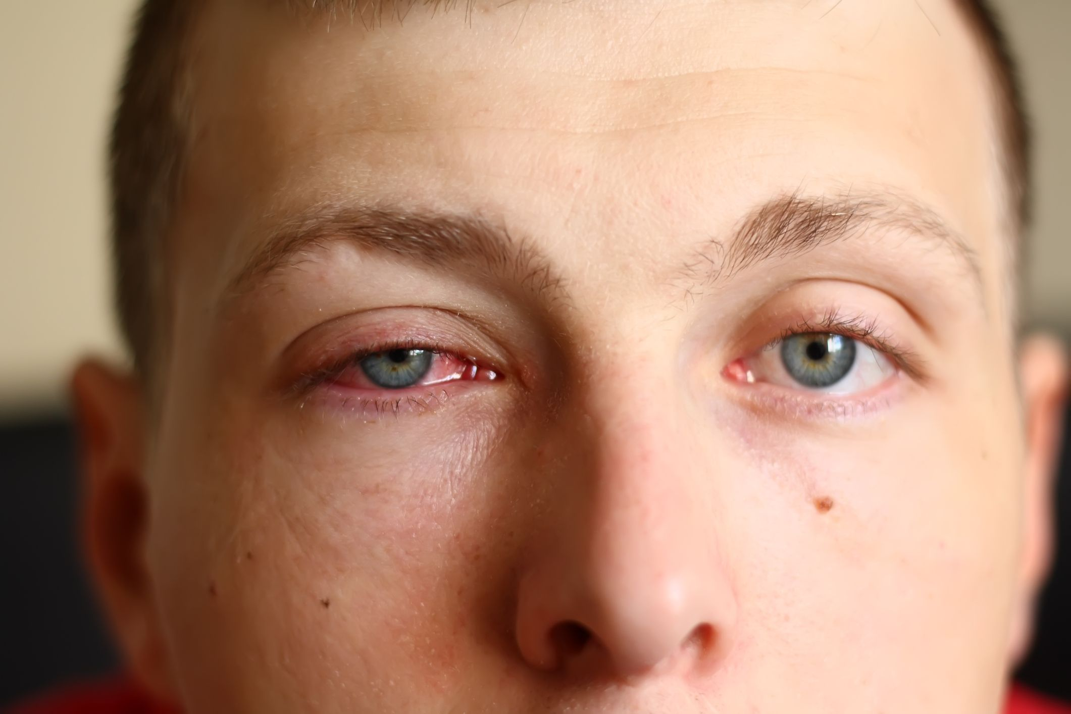 Pink Eye (Conjunctivitis) HealthLink BC