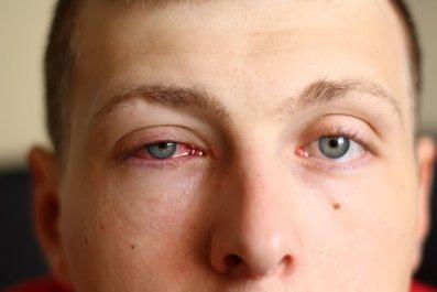 pink-eye-conjunctivitis-stock