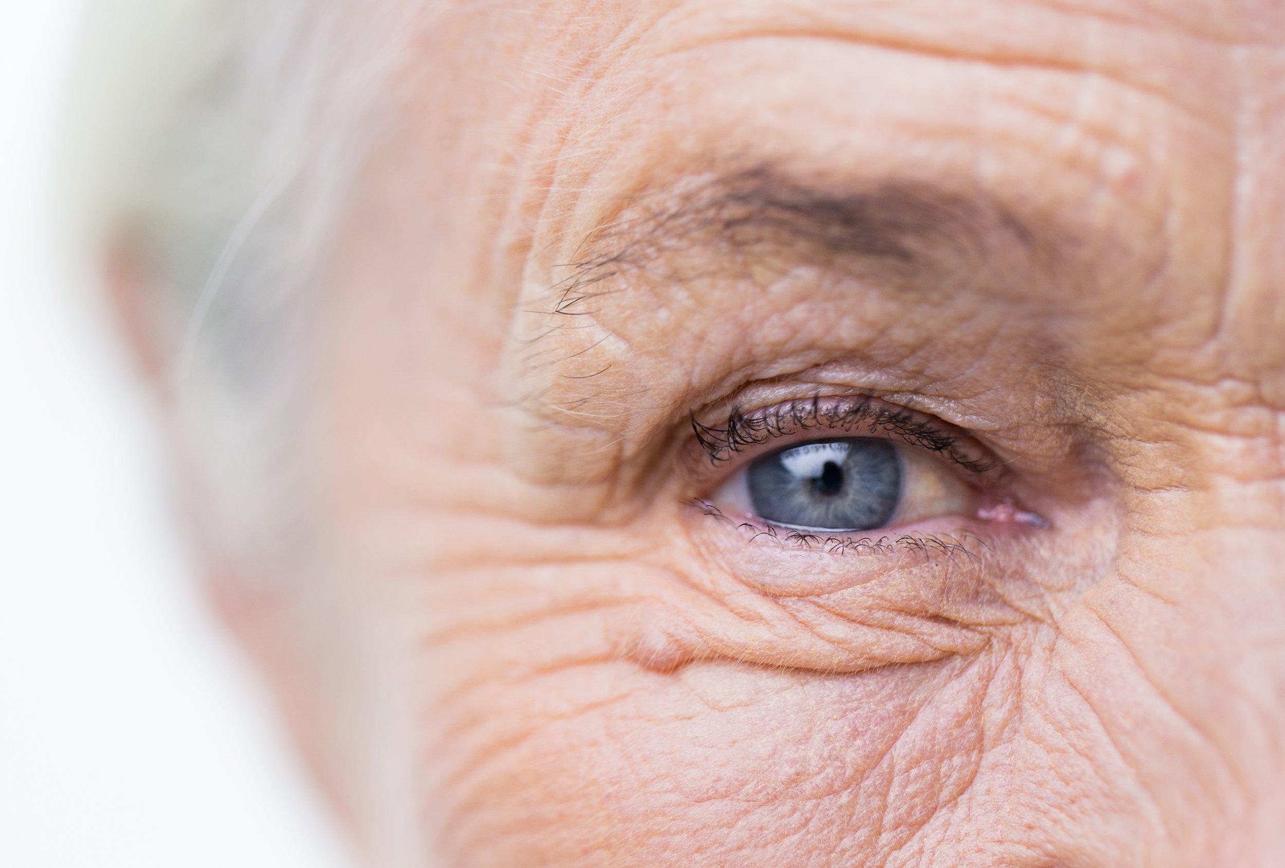 aging-wrinkles-old-grey-hair-stock