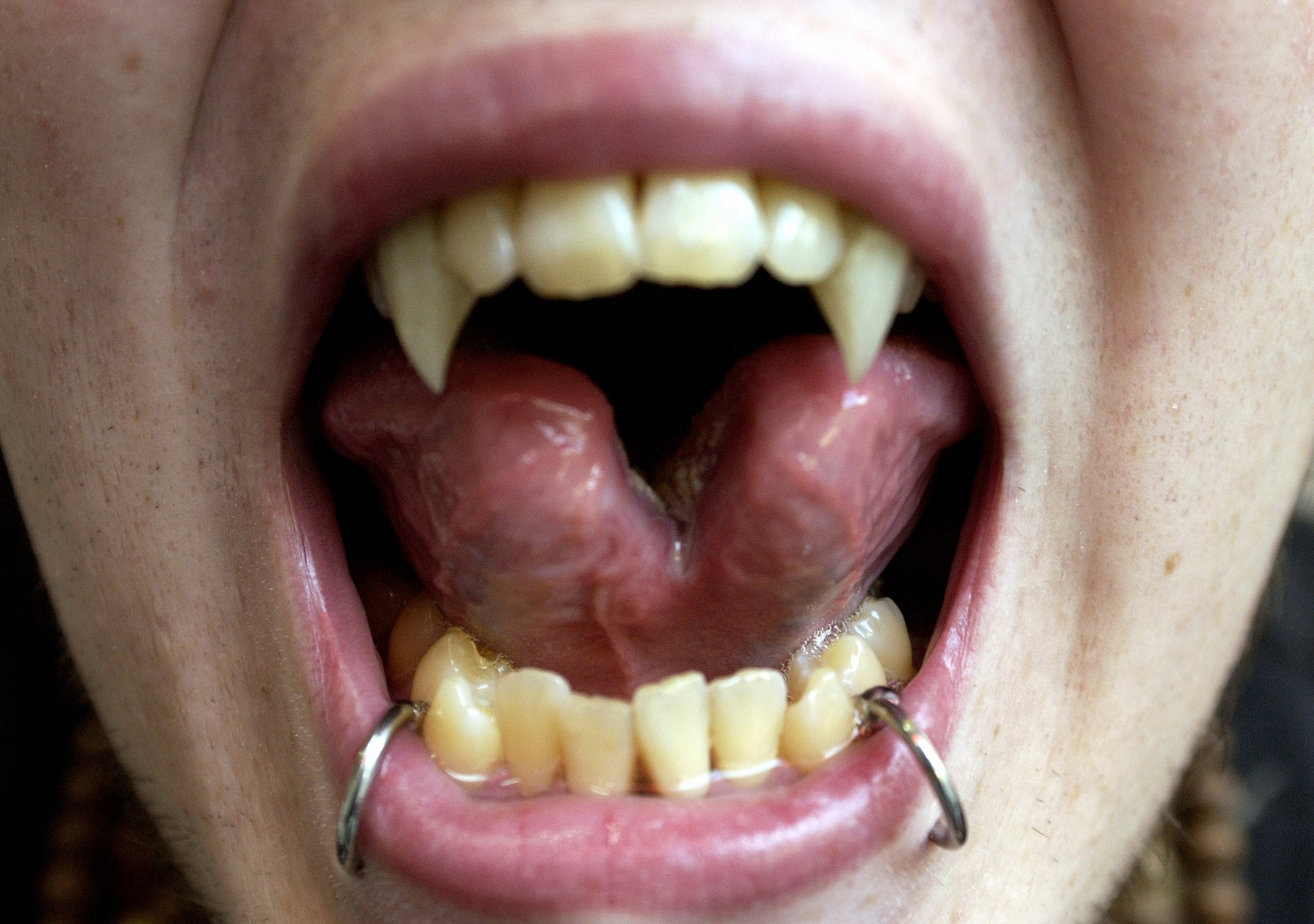 What Is Tongue Splitting Trend Could Have Dangerous Health Risks Surgeons Warn