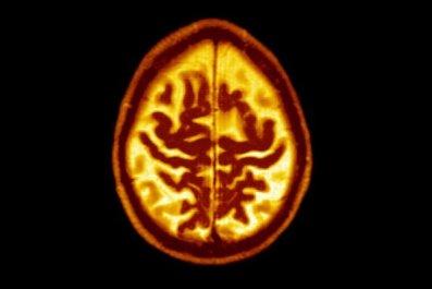 0831-brain