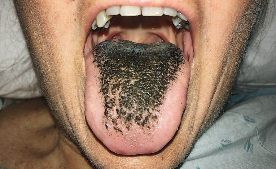is tongue What syndrome hairy black