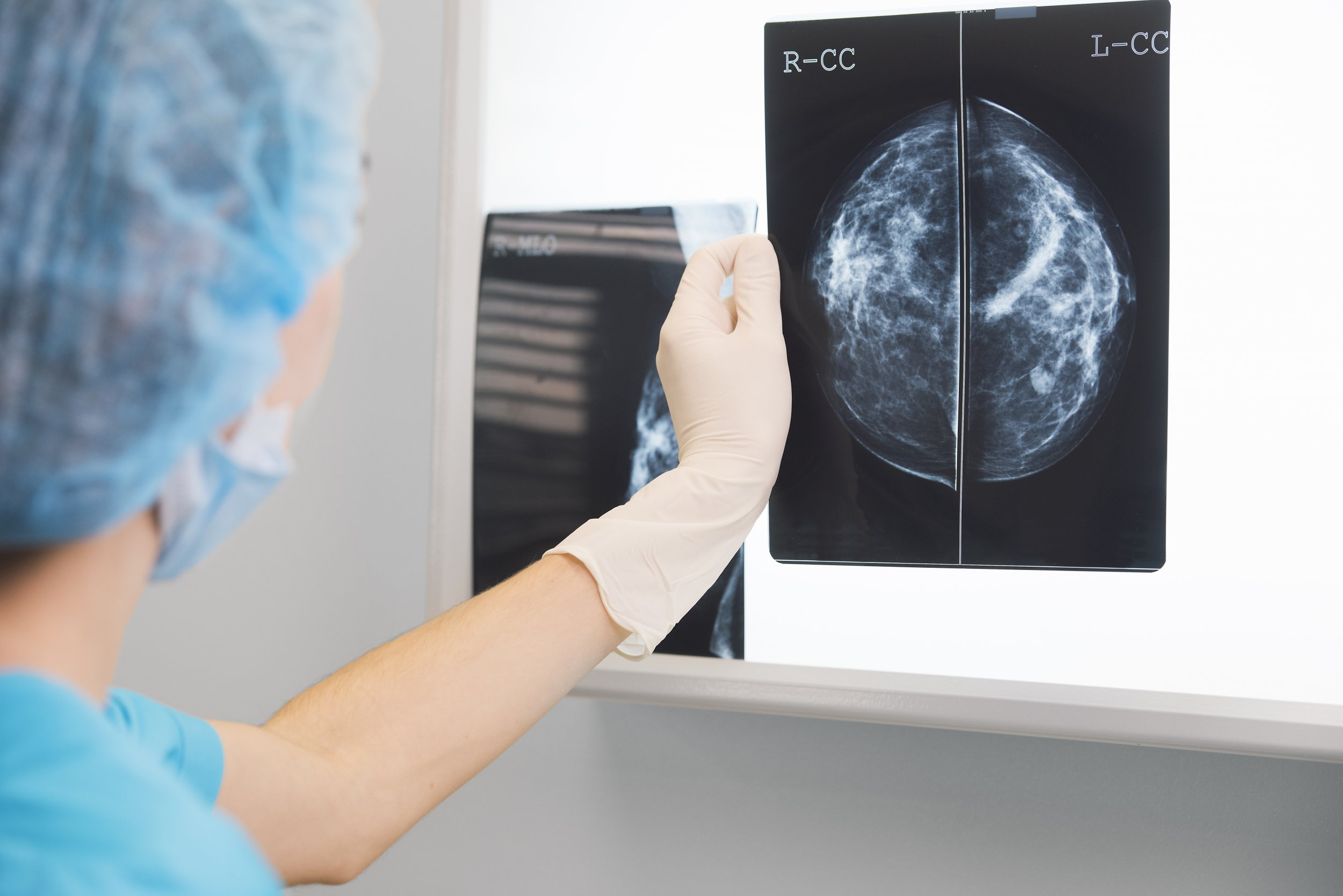 breast-cancer-xray-stock