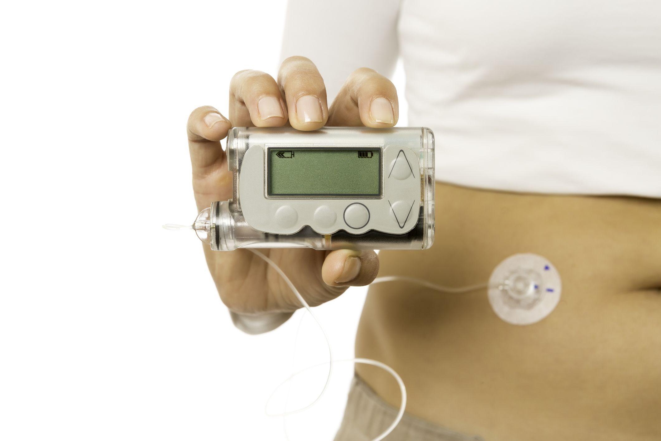 9_14_Insulin pump