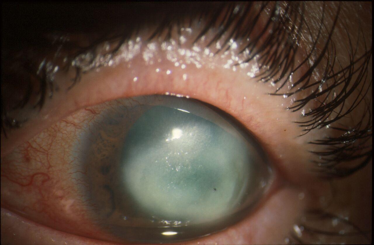 Eye with AK