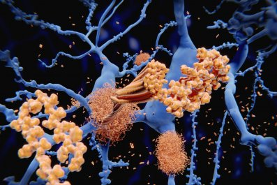 9_28_Alzheimer's disease