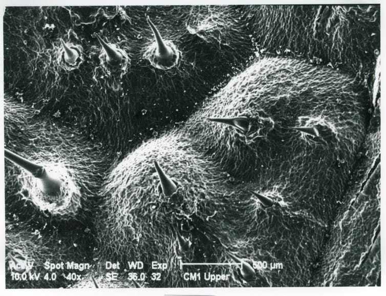 stinging tree micrograph