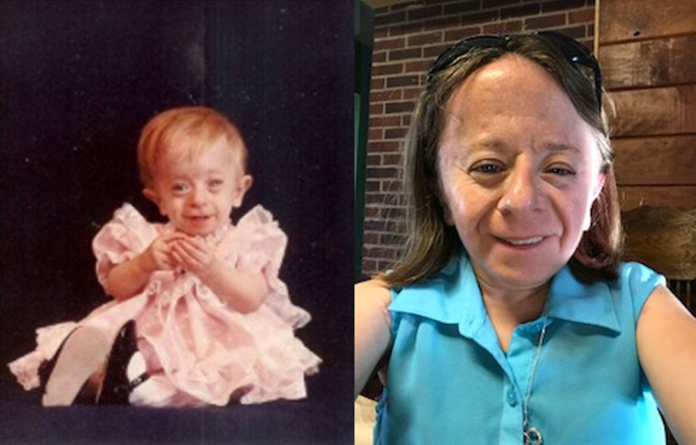 Saul-Wilson Syndrome
