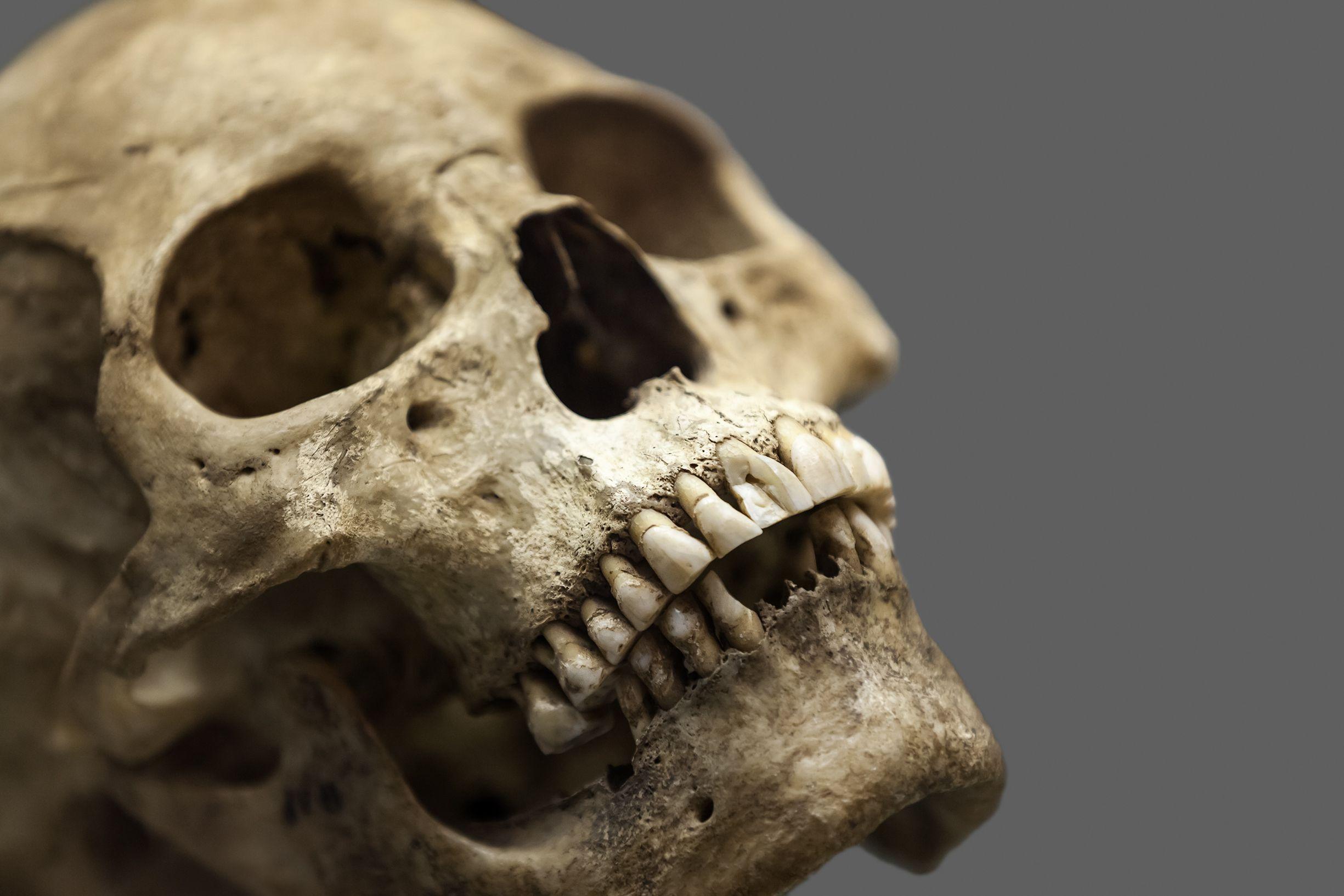 10_18_Skull