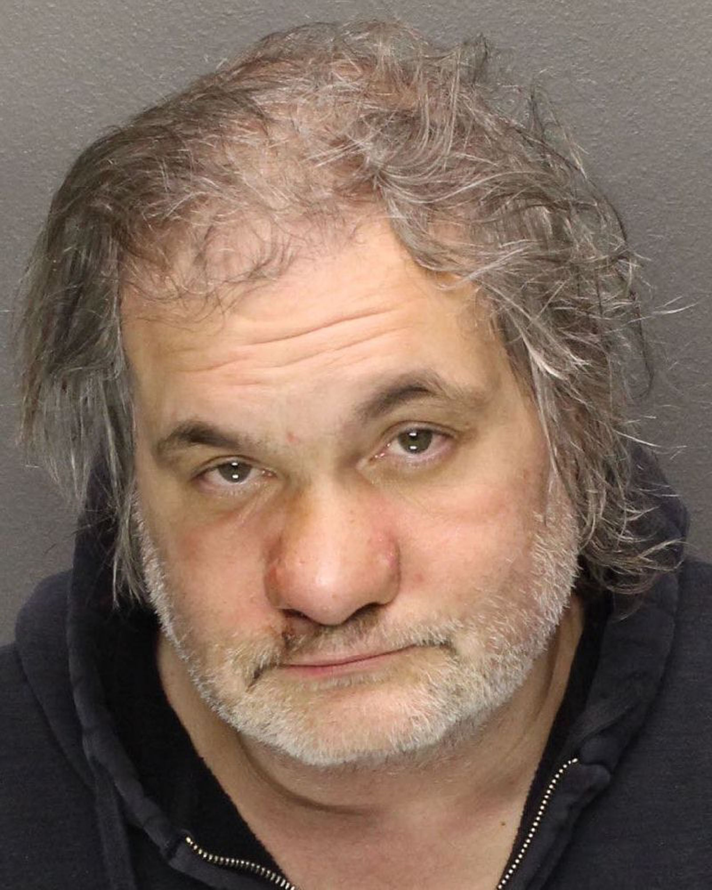 a nose for rehab comedy artie lange tweets photo of deformed nose