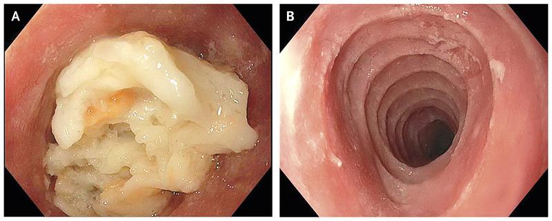 Trachealization Esophagus