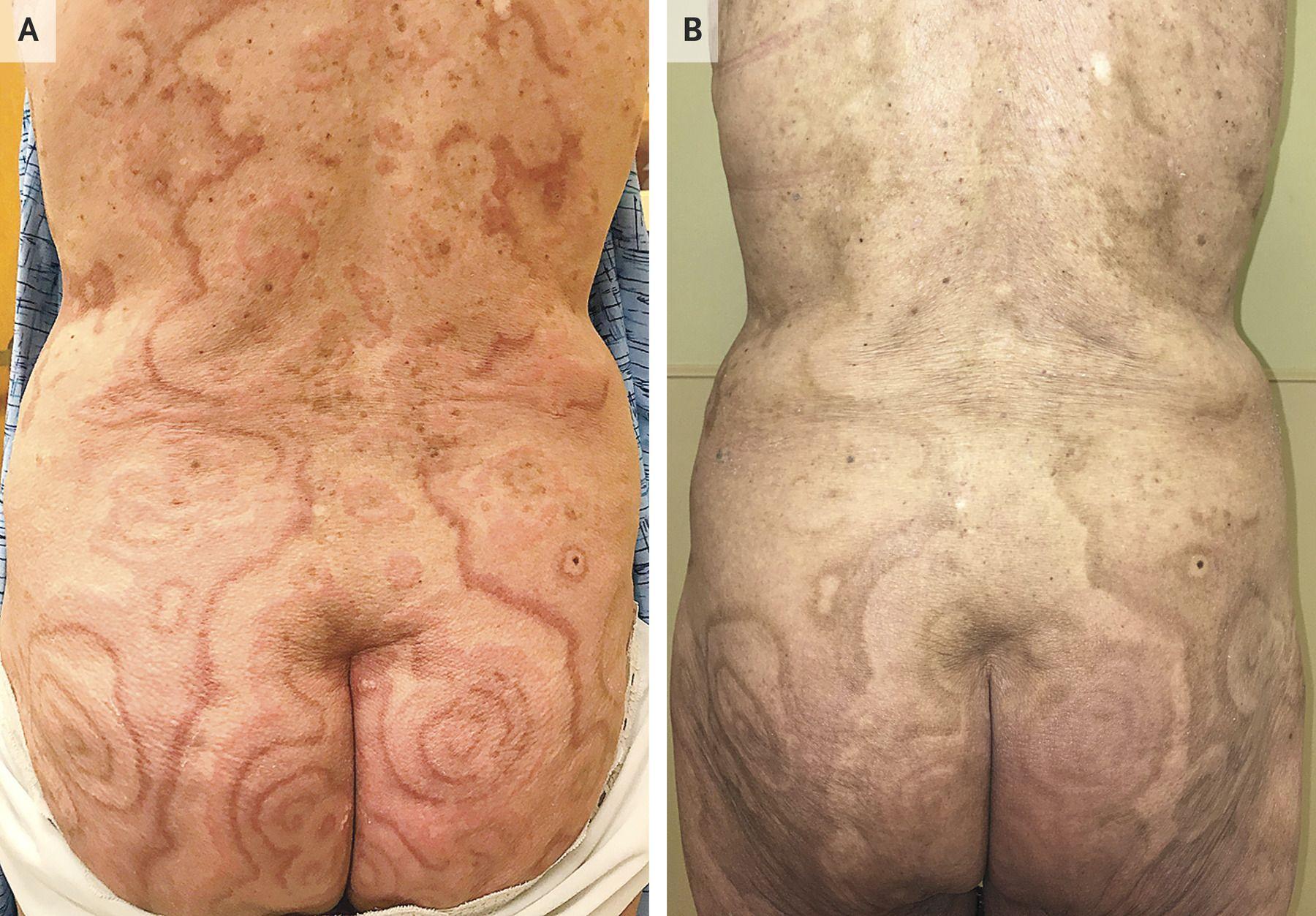 Cancer patterned skin