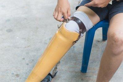 Rappahannock Regional Jail - prosthetic leg