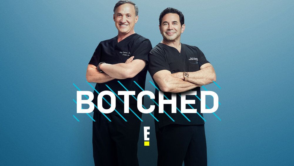 'Botched' Episode 12 Recap