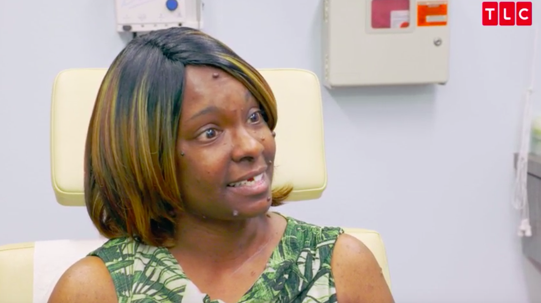 Where Is 'Dr. Pimple Popper' Subject Brittney Now? Update on Dr. Lee's Patient Who Has Mysterious Bumps on Her Face