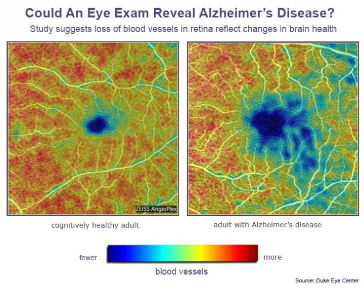 alzheimer's eye test