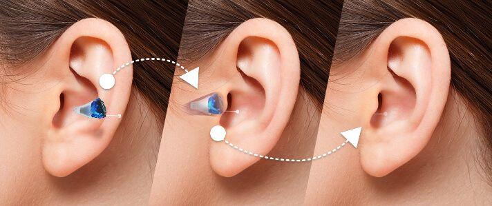 Hearing Aid 1