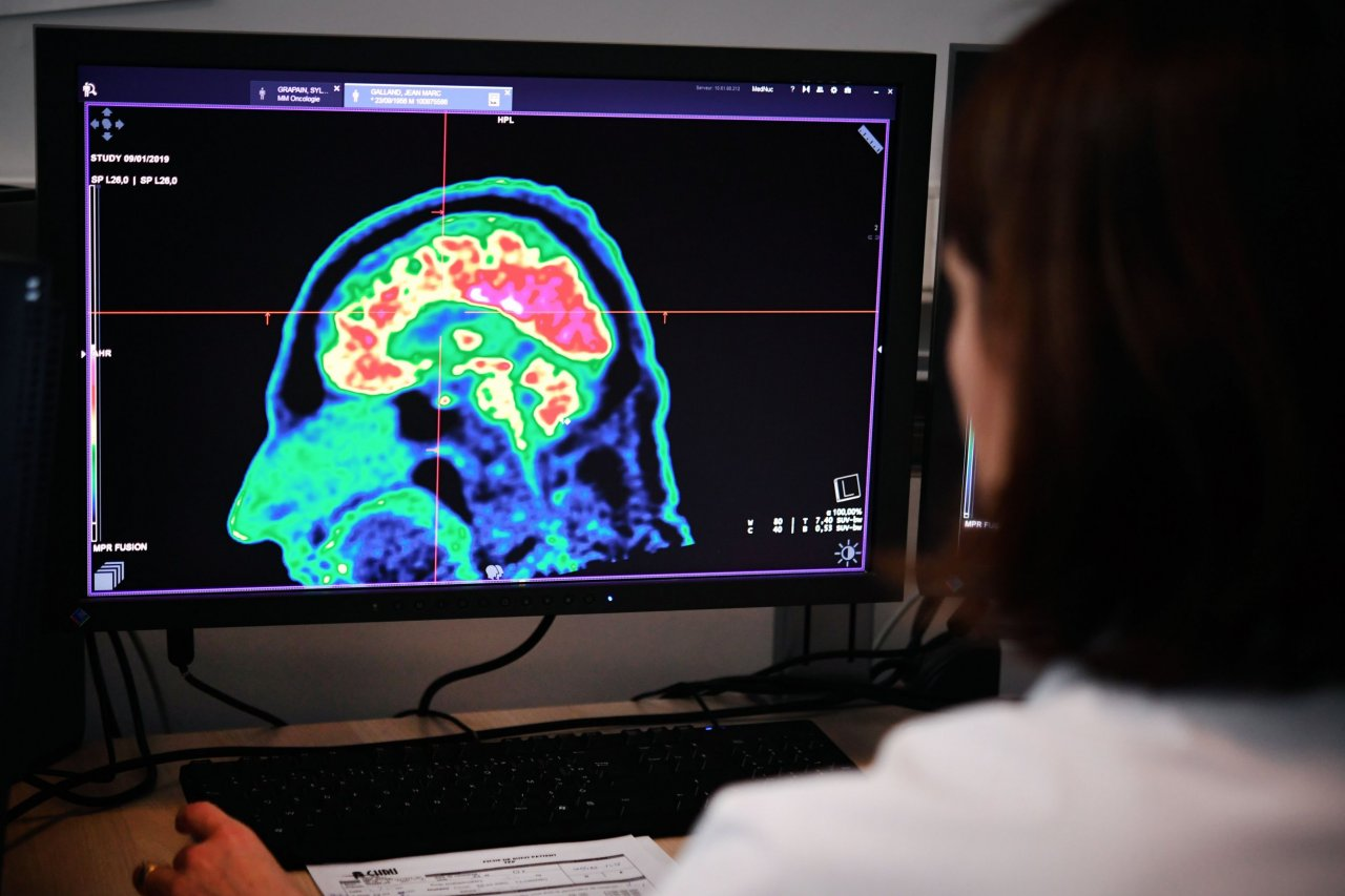 Scientists can see suicide risks in brain imaging