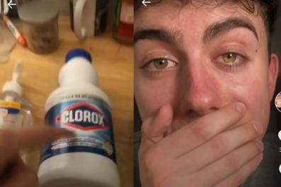 tiktok eye bleach challenge