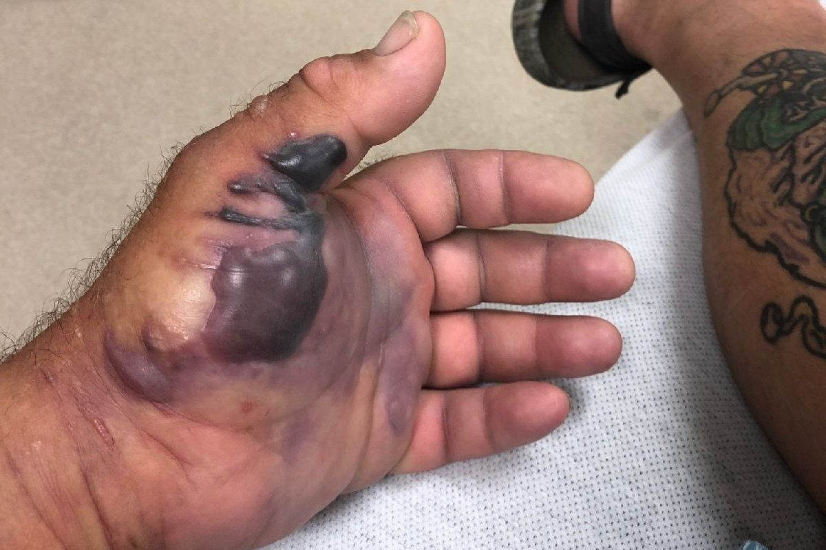 Flesh-eating bacteria infects Florida fisherman in Gulf of Mexico