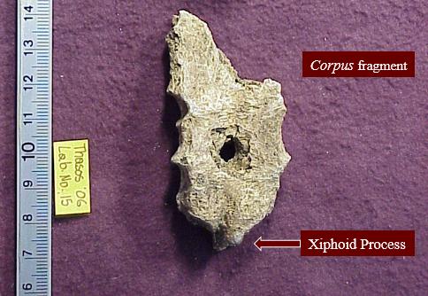 Ancient Greece, execution, bone, Thasos