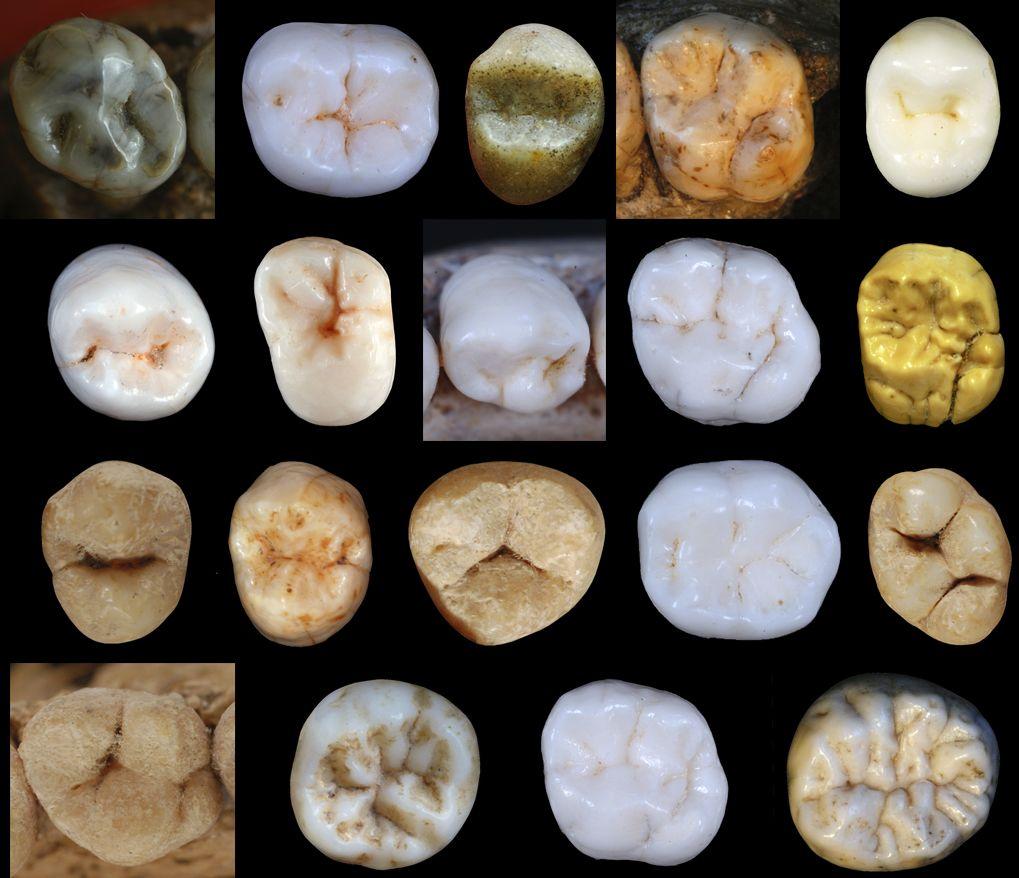 hominin teeth
