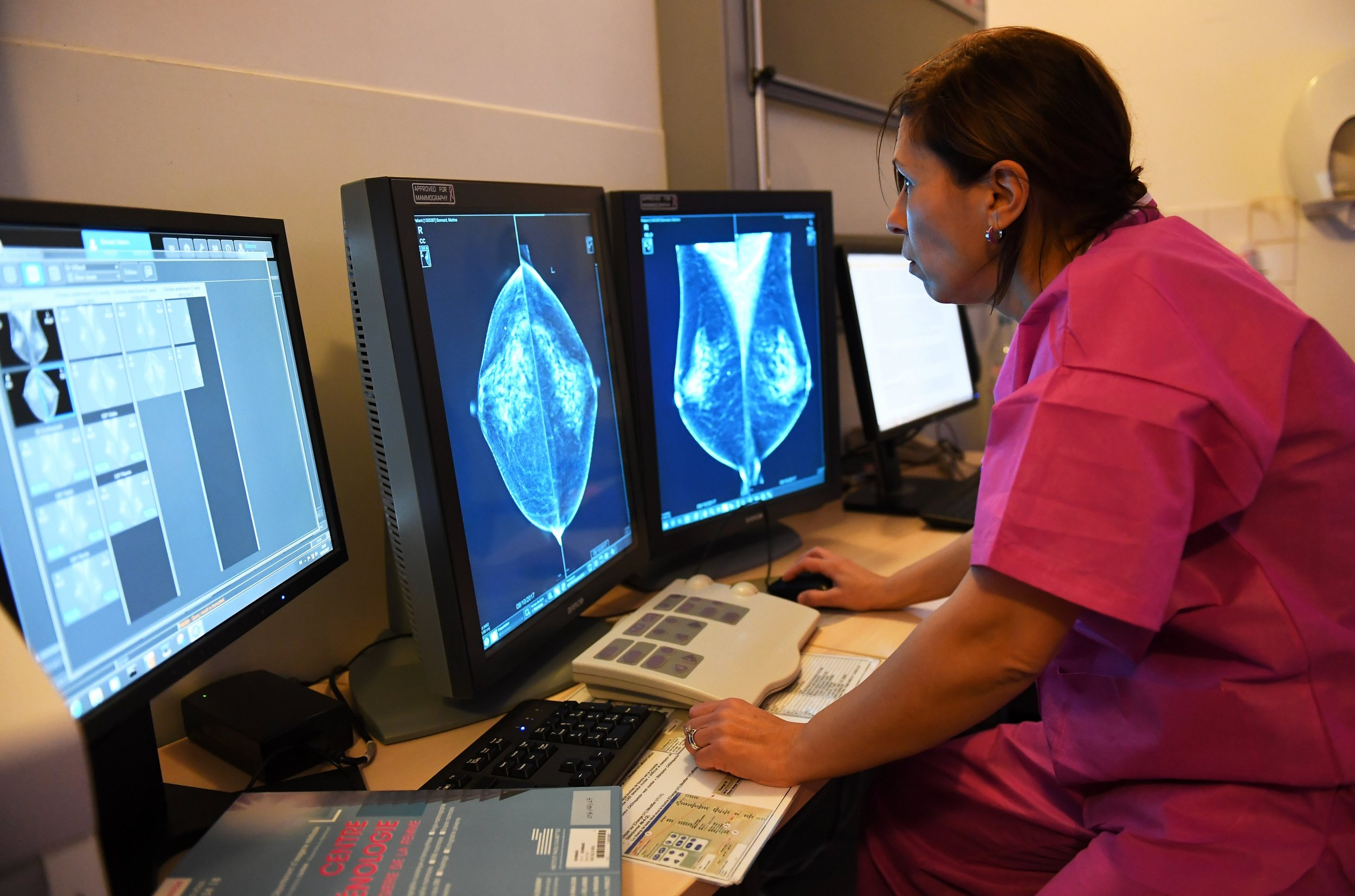 A doctor examines the results of a mammography at the Institute Paoli-Calmettes in France. Experts in the U.S. say physicians need to know more about breast density for breast cancer screening.