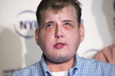 Patrick Hardison face transplant Langone Medical Center