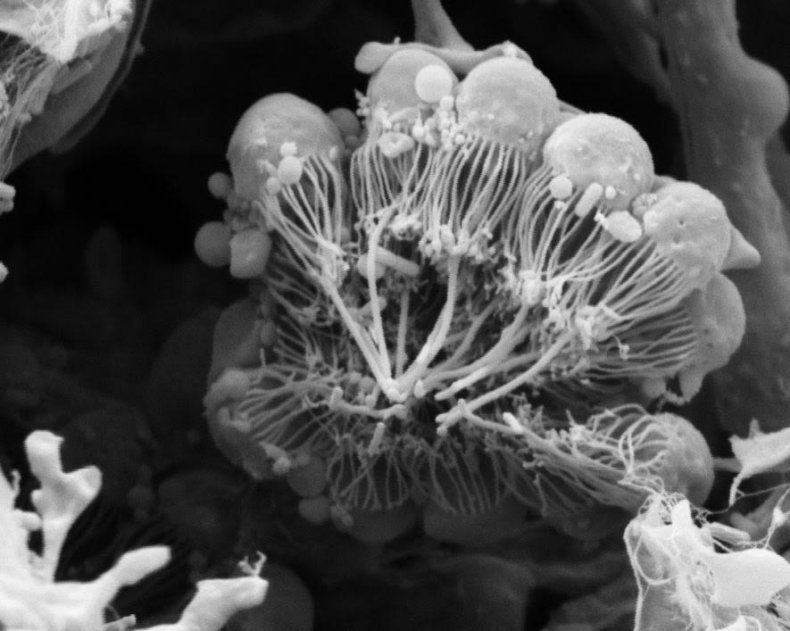 choanocytes