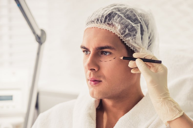 plastic surgery, cosmetic surgery, face lift, stock,