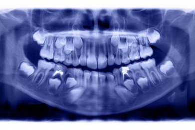dental xray stock