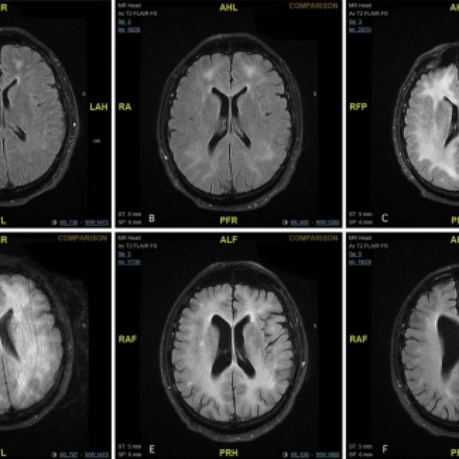 Scans Show Possible Link Between Brain >> Horrifying Mri Scans Show Brain Of Cocaine User Who Entered