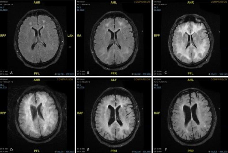 MRI brain scan cocain drug illegal effects