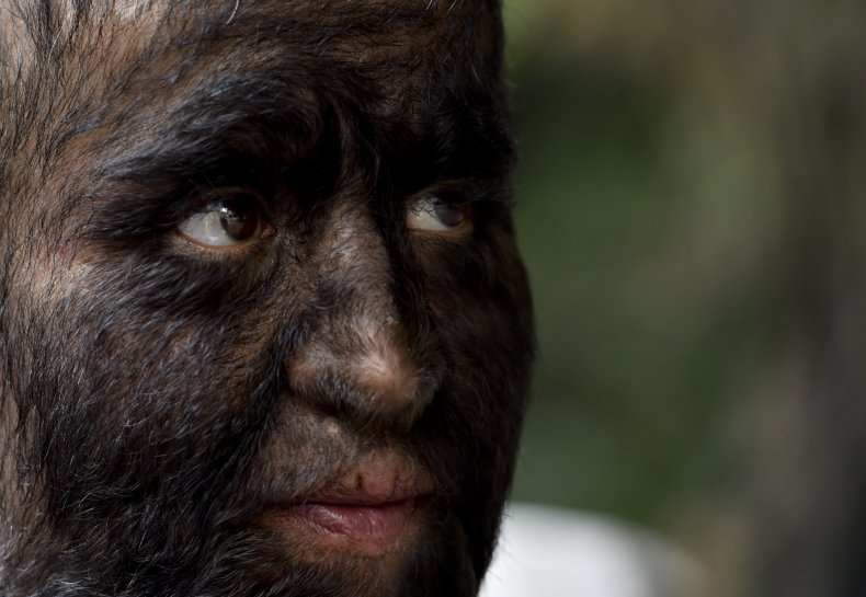 Chuy The Wolf Man, Jesus Aceves, hypertrichosis,werewolf syndrome