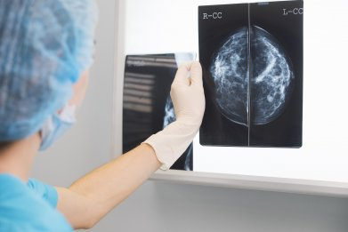 breast cancer, doctor, xray, healthy, getty, stock