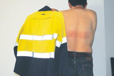 Burn High Vis Jacket