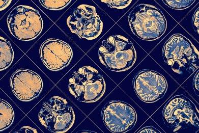 schizophrenia, mental illness, brain