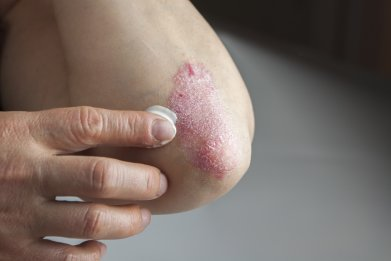Psoriasis, skin, dermatology, stock, getty,
