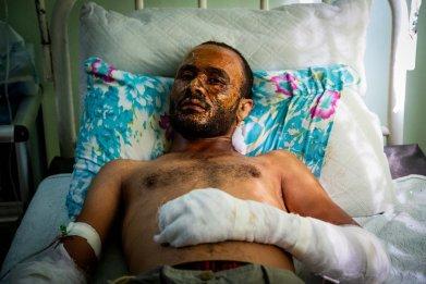 syria war hospital injury