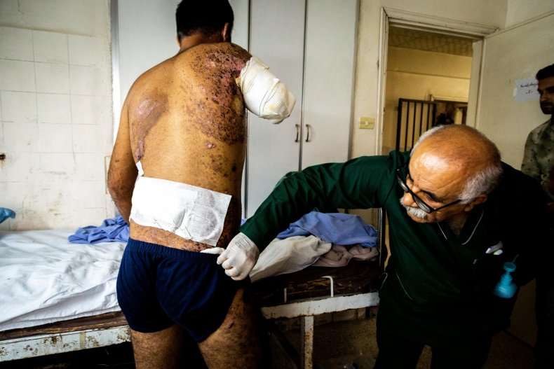 syria injuries war kurds conflict turkey
