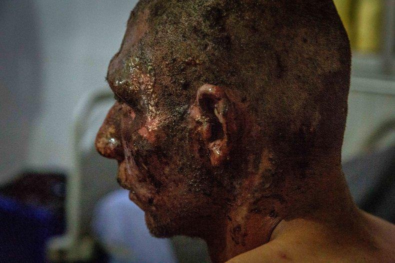 syria injured war hospital treatment