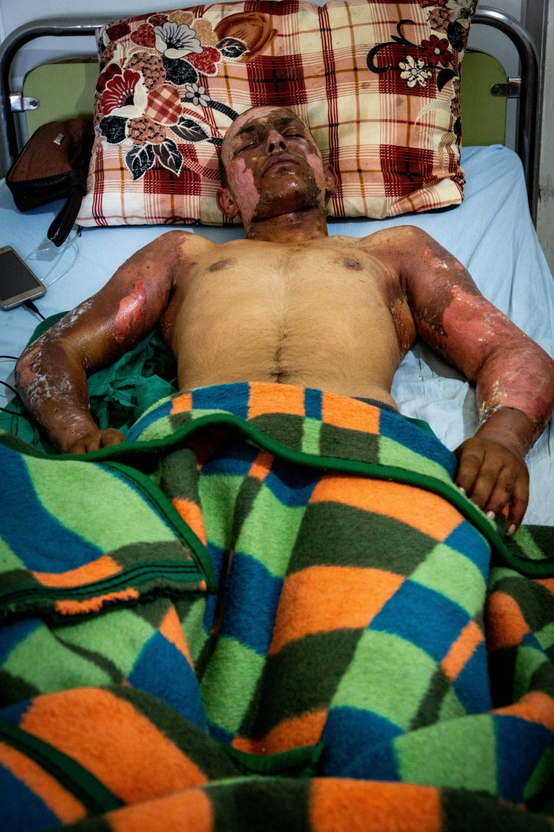 syria war injuries hospital