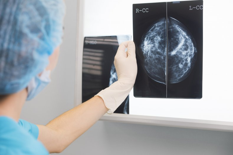 breast, mammogram, x-ray, stock, getty, health,