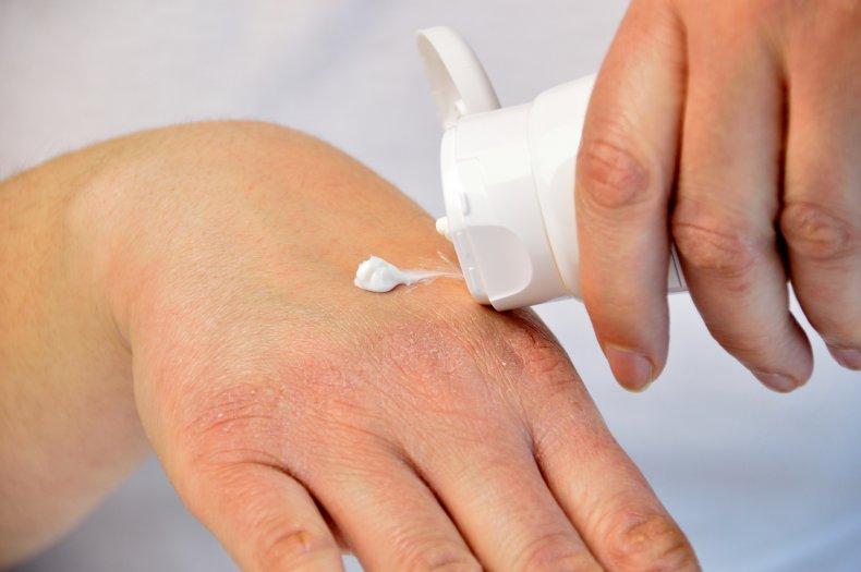 eczema, dry skin, getty, stock,