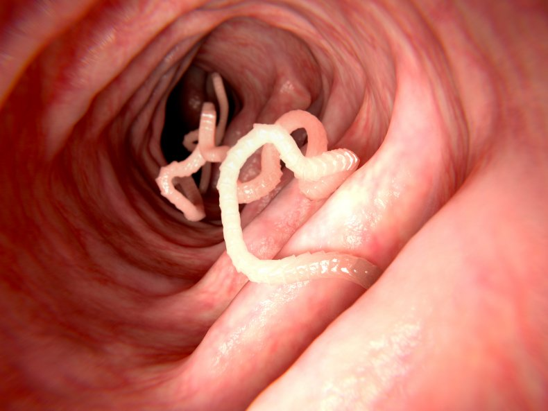 Tapeworm in human intestine