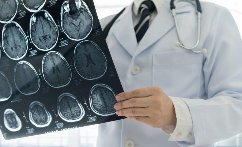 brain scan, stock, getty, xray