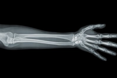 X-Ray of a human arm