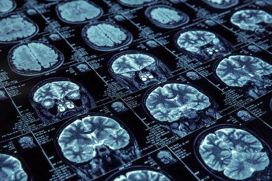 brain scans, health, stock, getty